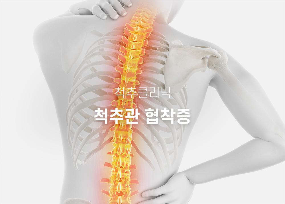 척추관111