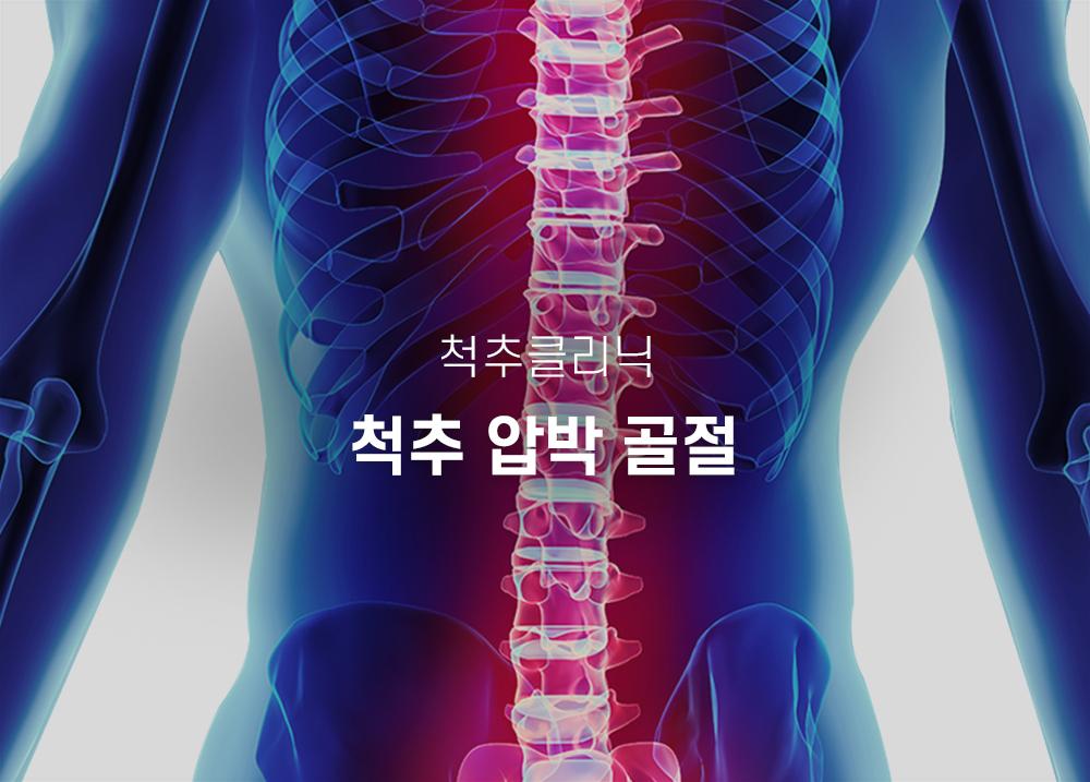 척추압박골절